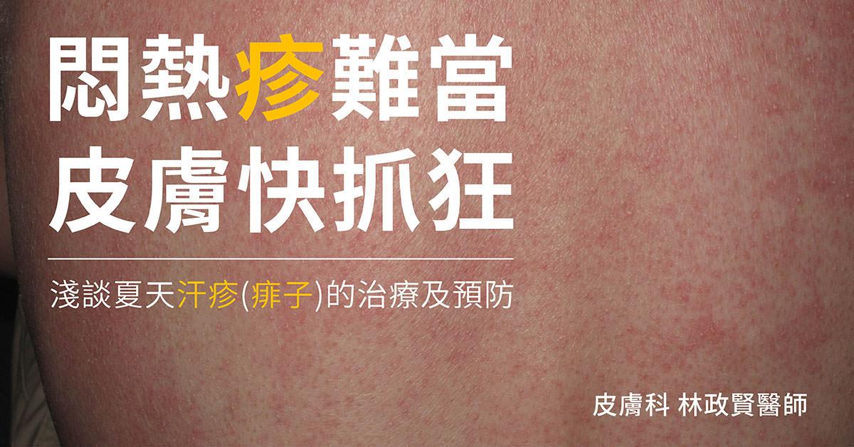 汗疹,痱子,太熱,熱疹,晶形汗疹,紅色汗疹,膿皰型汗疹,