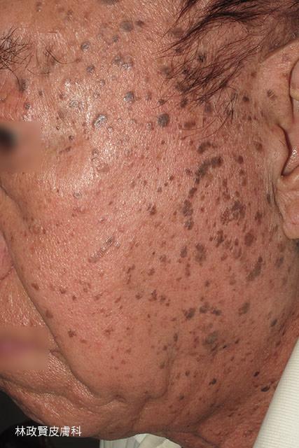 扁平疣,脂漏性角化症,老人斑,黑色丘疹病