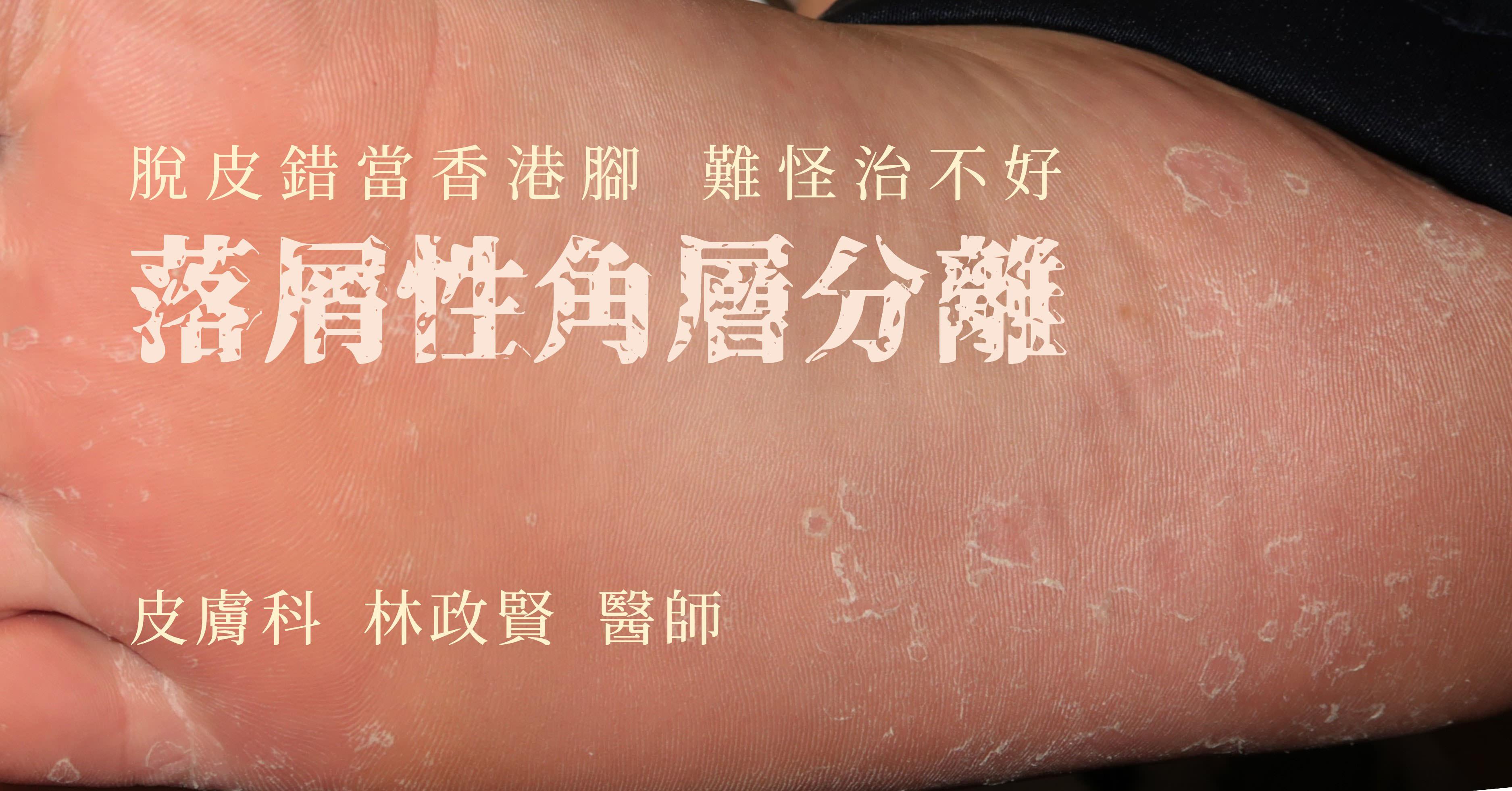 落屑性角層分離,剝脫性角質鬆懈症,keratolysis exfoliativa,香港腳,汗皰疹,手癬