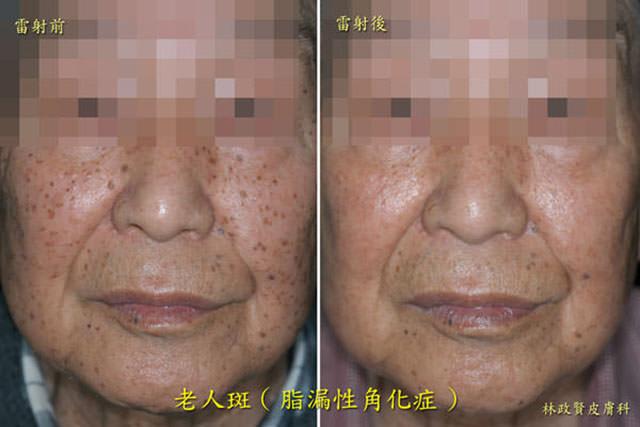 雷射除斑,脂漏性角化症,老人斑,色素斑點,