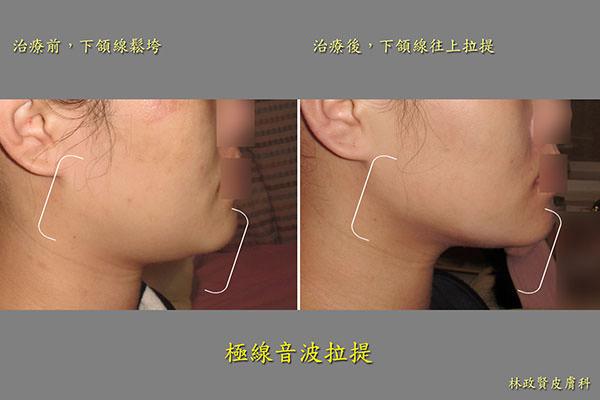 極線音波拉皮,ulthera,雙下巴,ultherapy