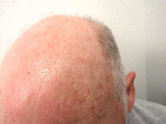 日光性角化症,actinic keratosis