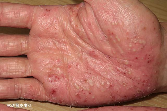 掌蹠膿皰症,手掌腳掌膿皰症,palmoplantar pustulosis