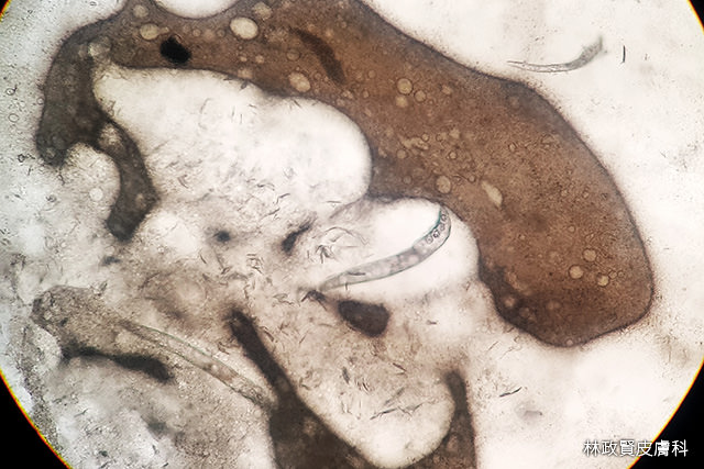 酒糟,酒渣,玫瑰斑,rosacea,脂漏性皮膚炎,青春痘,mirvaso,soolantra,敏立紓,舒利達,舒立達,蠕形蟎,蠕形蟲,demodex,demodicosis