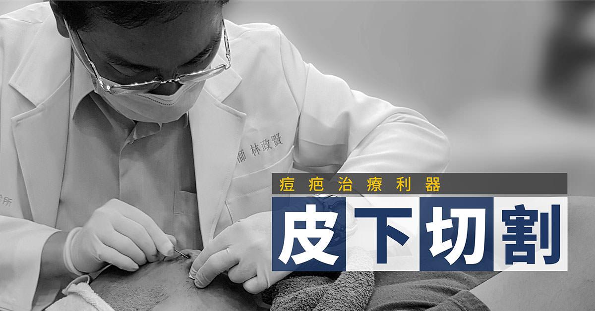 痘疤,凹洞,凹疤,皮下切割,皮下剝離,subcision