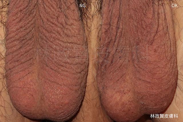 陰囊濕疹,溼疹,scrotal eczema