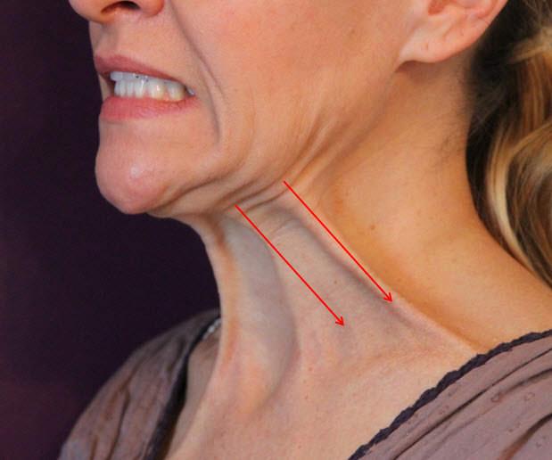 platysma,band,頸紋,雞脖子,肉毒桿菌,botox,dysport,擴頸肌