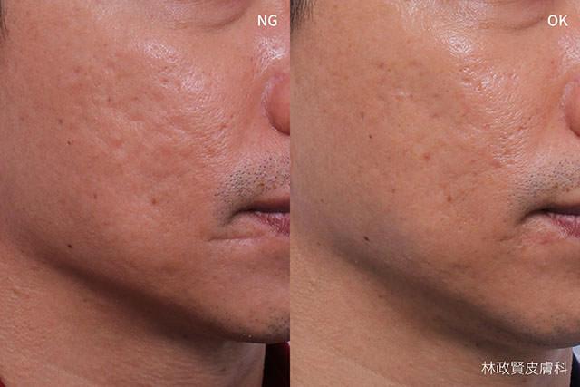 痘疤,協同式療法,synergy,acne,scar,凹洞,凹疤,高雄痘疤推薦