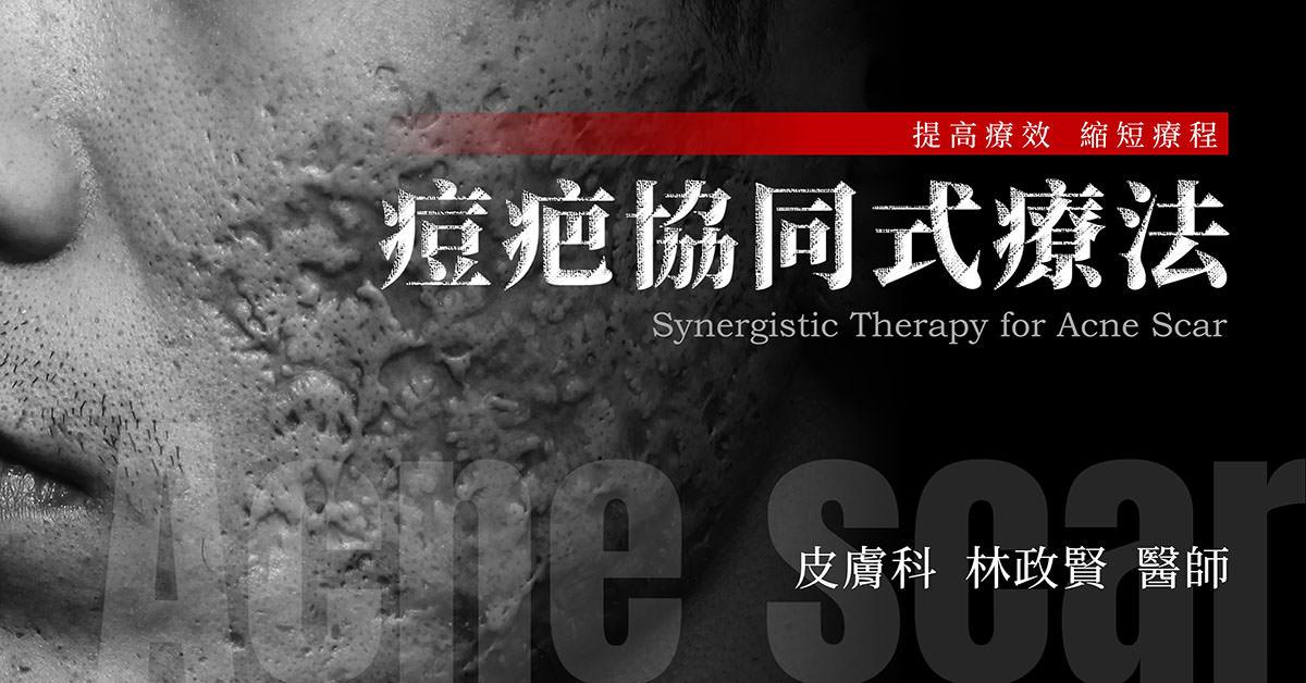 痘疤,協同式療法,協同式痘疤療法,synergy,acne,scar,凹洞,凹疤,高雄痘疤推薦