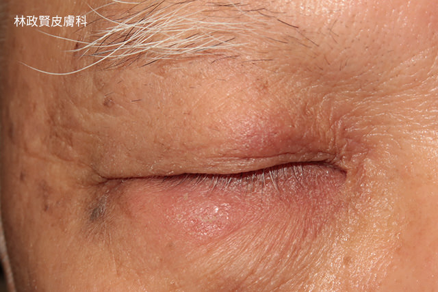 neomycin,新黴素,接觸性皮膚炎,contact dermatiti,眼藥水