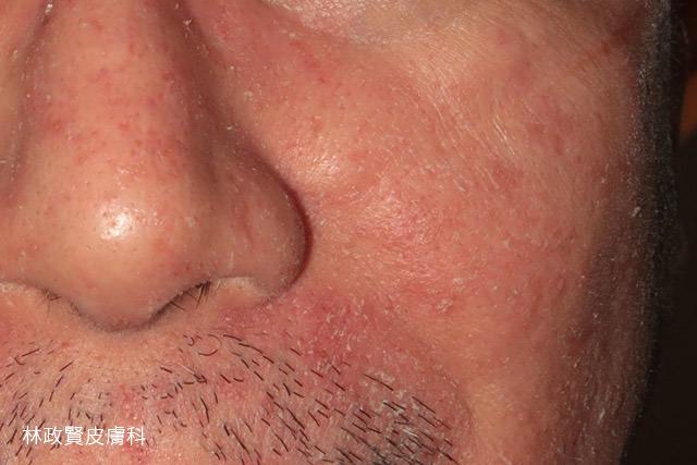 脂漏性皮膚炎,皮屑芽孢菌,頭皮屑,頭皮癢,皮脂漏,