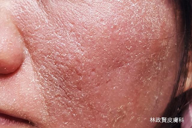 異位性皮膚炎,皮膚過敏,atpic,dermatitis,pde4,crisaborole,過敏,eucrisa,apremilast,