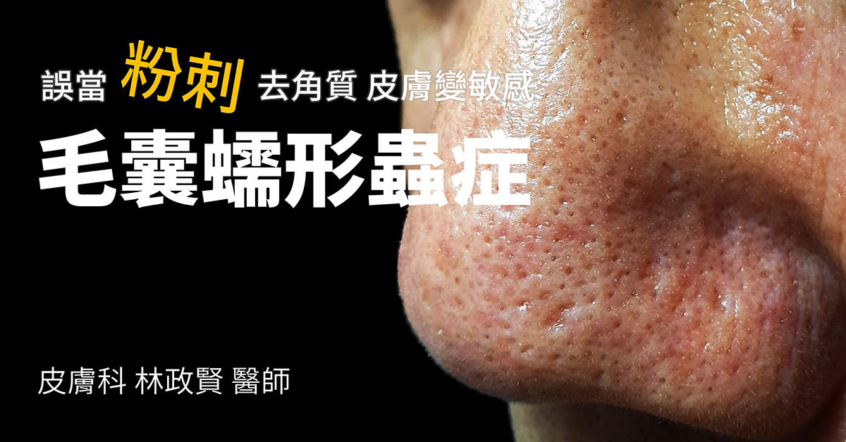 毛囊蠕形蟲症,demodicosis,demodex,粉刺
