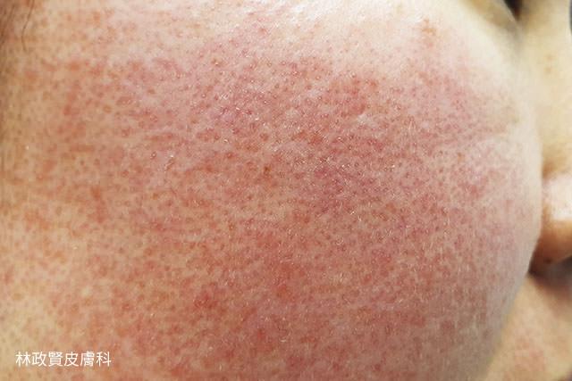 毛囊糠疹,demodex,demodicosis,毛囊蠕形蟲症,顯微鏡