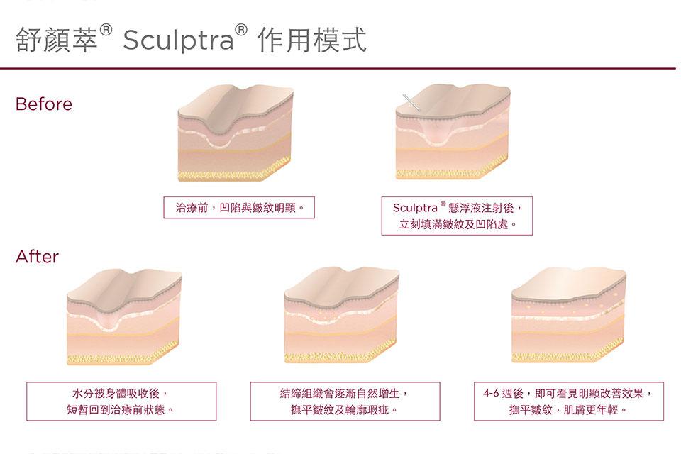 舒顏萃,Sculptra