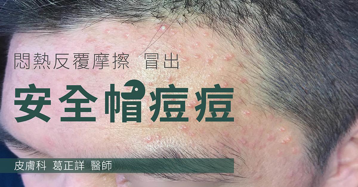 外力型痘痘,粉刺,丘疹,毛囊發炎,痘痘,安全帽痘,頭盔痘,口罩痘