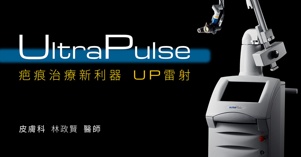 ultrapulse,up雷射,痘疤,疤痕,外傷疤痕,燒燙傷疤痕