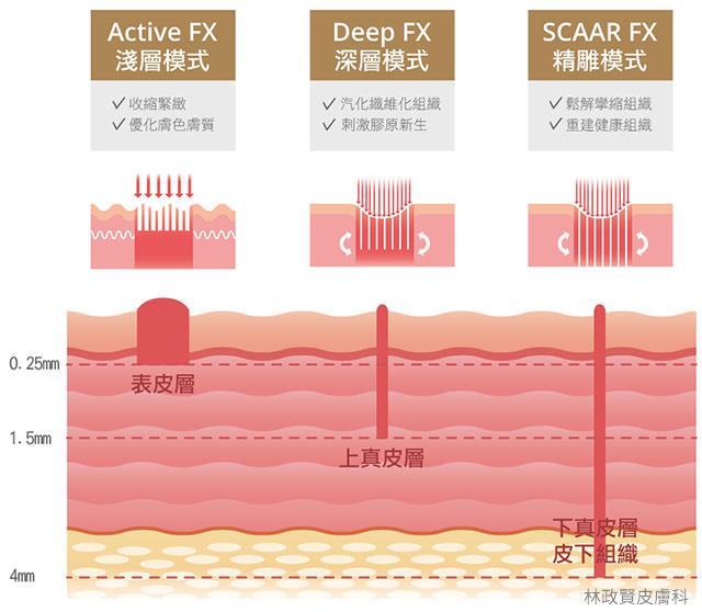ultrapulse,up雷射,痘疤,疤痕,外傷疤痕,燒燙傷疤痕高雄UP雷射推薦