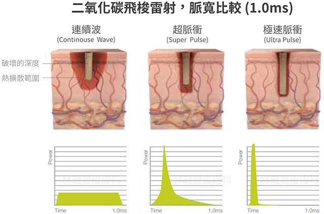 Ultra pulse,up雷射,痘疤,疤痕,外傷疤痕,燒燙傷疤痕高雄UP雷射推薦