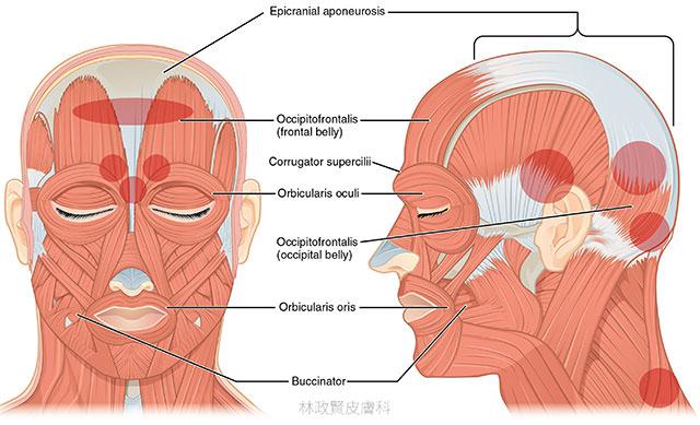 肉毒桿菌素,慢性偏頭痛,chronic migraine,botox,botulinum toxin,xeomin,dysport