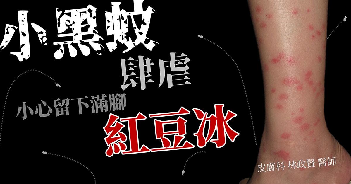 小黑蚊,台灣鋏蠓,Forcipomyia,taiwana,黑金鋼,烏微仔,紅豆冰