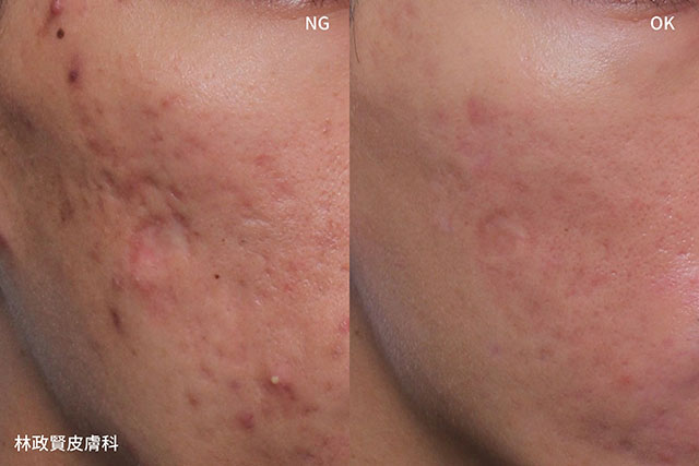 uUltra pulse,up雷射,痘疤,疤痕,外傷疤痕,燒燙傷疤痕高雄UP雷射推薦