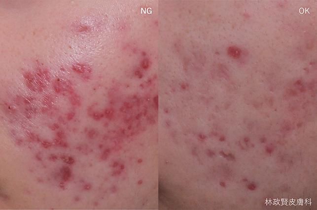 紅痘印的完整攻略:紅色痘疤需要治療嗎?哪種雷射最有效?有省錢便宜高CP值的方法嗎?