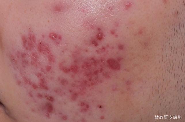 紅痘疤,紅痘印,紅色痘疤,紅色痘印,脈衝染料雷射,強力脈衝光,585黃雷射,577琥珀雷射,杜鵑花酸