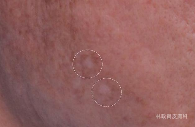 up雷射,真皮移植,痘疤治療推薦,TVBS,LOVE,林政賢醫師,高雄皮膚科診所