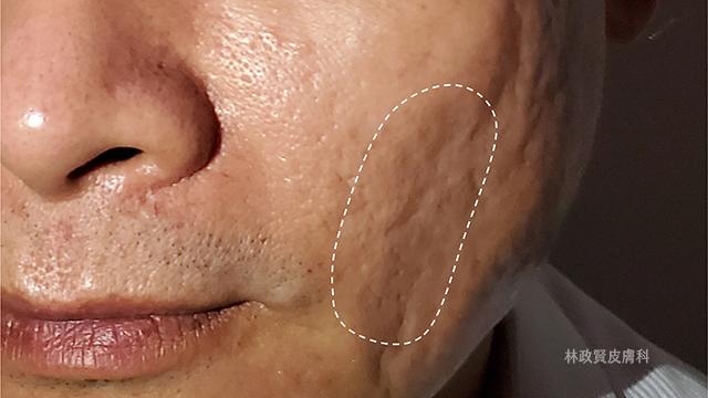 真皮移植,痘疤治療推薦,TVBS,LOVE,林政賢醫師,高雄皮膚科診所