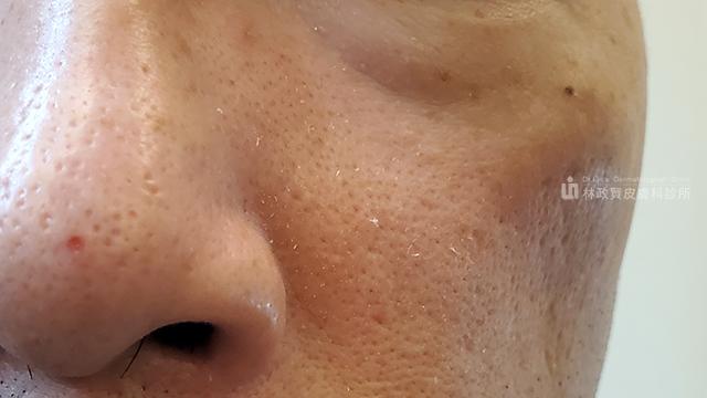 脂漏性皮膚炎,皮屑芽孢菌,頭皮屑,頭皮癢,皮脂漏,保濕乳液,皮膚炎,出油,黴菌,免疫調節劑,類固醇酒糟,臉紅,脫屑,施必麗乳膏,Sebaclair,活膚保濕露,Sebovalis,Quasix,瑰麗,